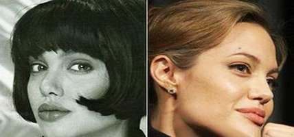 Как зрительно уменьшить кончик носа