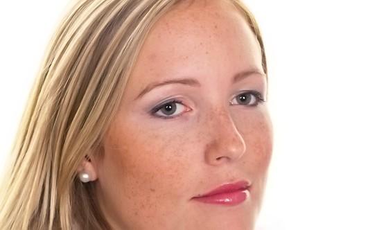 Крема пигментация на лице