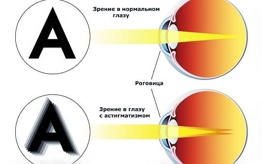 Метод восстановления зрения по шичко бейтса по восстановлению зрения
