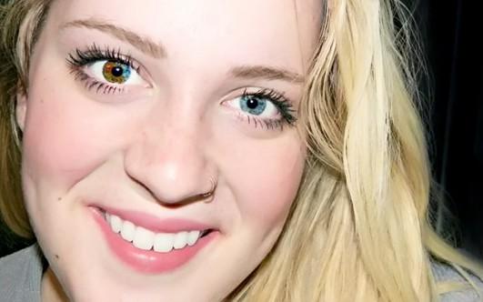 Разный цвет глаз у человека причина