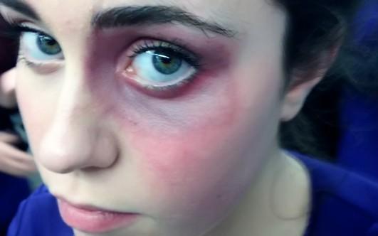 Как быстро избавиться от синяка на лице или теле