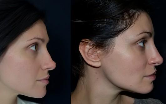 Как выровнять перегородку носа без операции