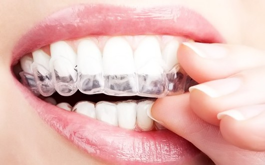 Какой хорошее средство отбелить зубы