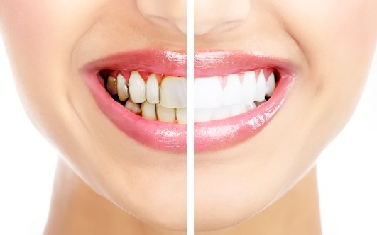 Налет на зубах черный: причины и 99