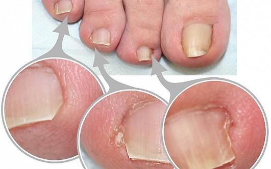 На ногте грибок лечить йодом