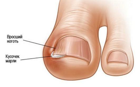 Грибок ногтя лечение уксусом