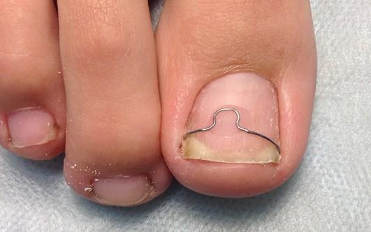 Народные средства от вросшего ногтя на ноге