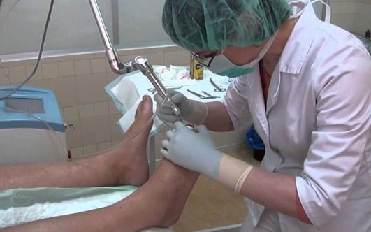 Средство для лечения грибка ногтей у детей