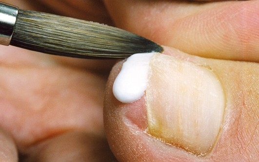 Лечение онихолизис на ногте