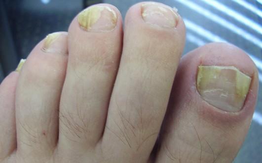 Препарат для лечения грибковых заболеваний ногтей
