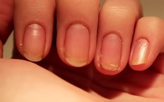 Слоятся и ломаются ногти на руках. Что делать 28