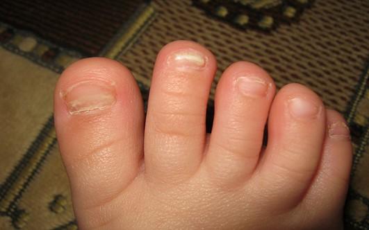 У ребёнка слоятся ногти на руках и ногах: почему и что делать