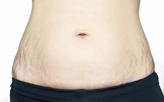Калькулятор подсчета калорий онлайн для похудения онлайн