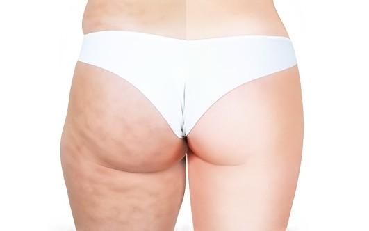 Упражнения для похудения подбородка и щек