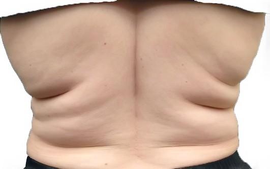 убрать жир со спины и боков дома