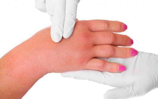 Почему отекают и болят пальцы на руках
