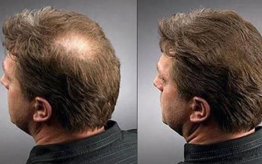 Средства для роста волос на голове для мужчин