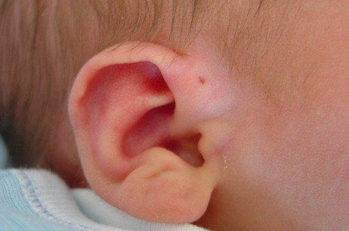 Лимфаденит за ухом у ребенка фото
