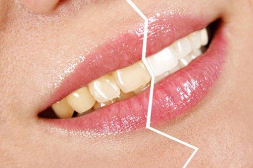 Профессиональные средства для отбеливание зубов