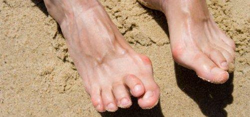 Накладка на палец ноги от косточки купить в аптеке