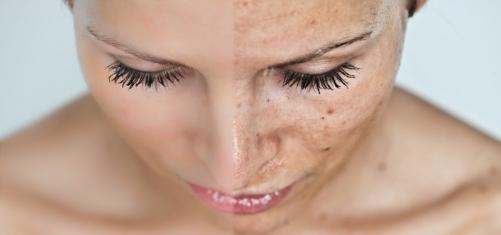 Противозачаточные средства от прыщей на лице