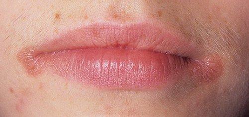 Красные пятна на краю губы