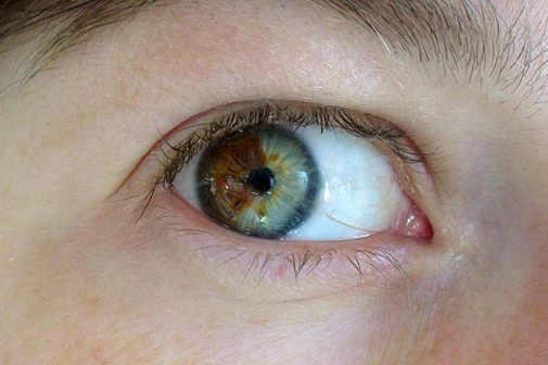 Меня изменился цвет глаз