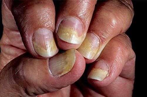 Псориатический артрит симптомы лечение прогноз