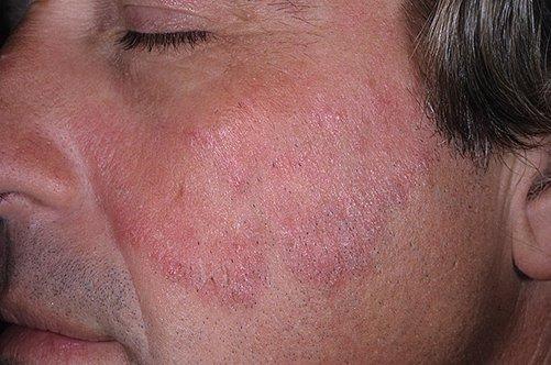 Псориаз причины как выглядит (ФОТО) и как лечить заболевание